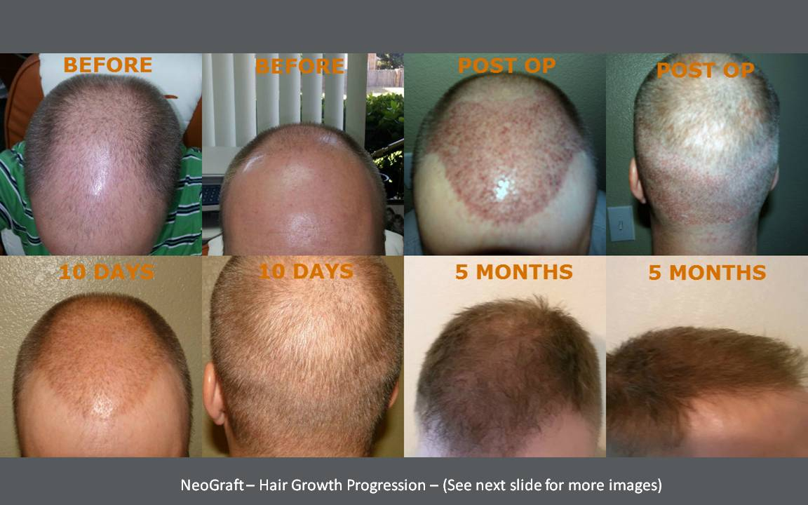 Before and After stock photography images of NeoGraft patients